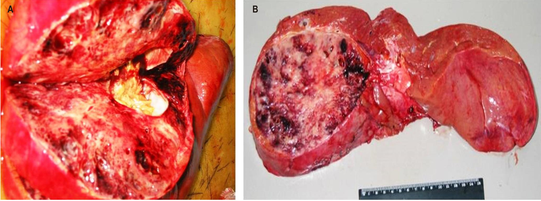 Figura 1. A. Corte del lóbulo derecho: obsérvese la masa tumoral, aparentemente bien delimitada, de aspecto abigarrado y con zonas blanquecinas hemorrágicas. B. Obsérvese la lesión tumoral típica