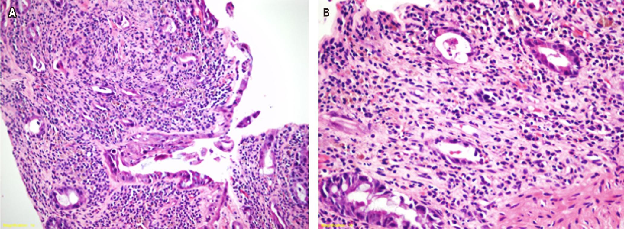Figura 1. A. HE 4 X, pérdida y miniaturización de glándulas. B. HE 40 X, nucleomegalia con citomegalia.