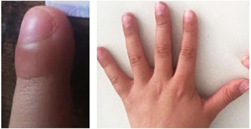 Figura 1. Hipocratismo digital documentado inicialmente (izquierda), y en mejoría posterior al tratamiento insaturado (derecha).