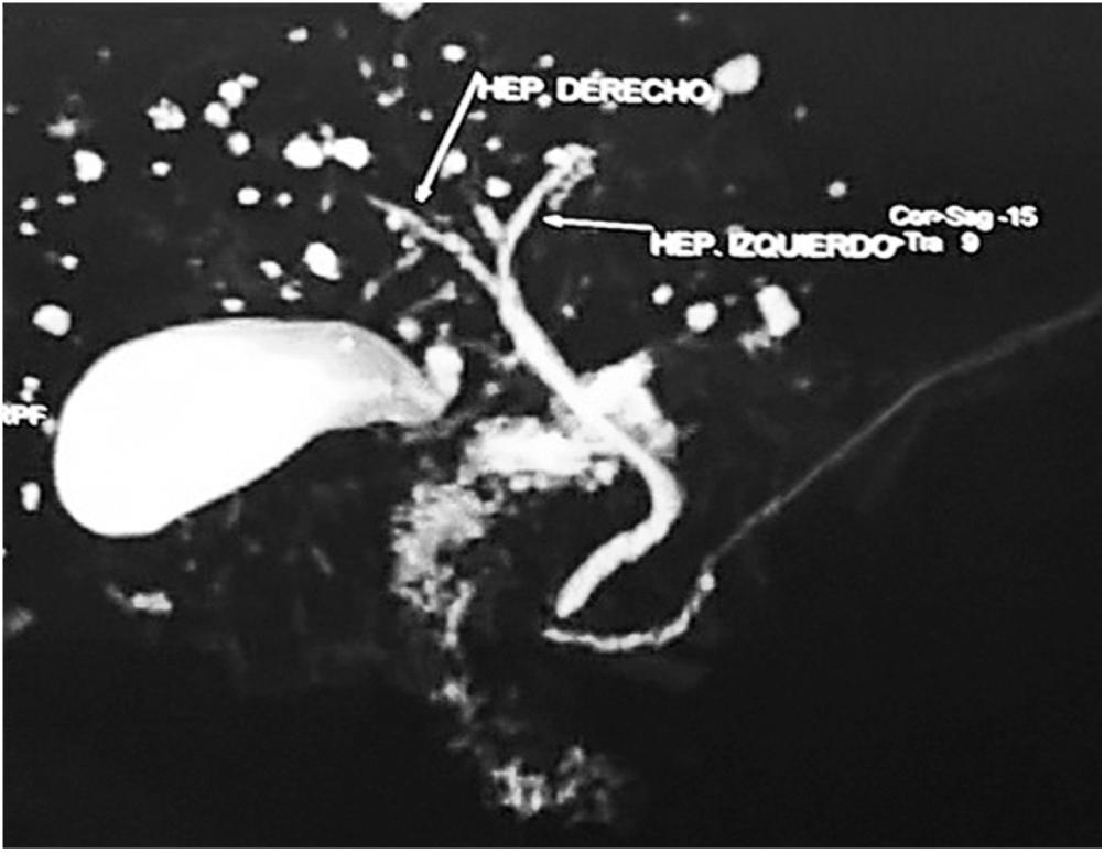 Figura 1. Múltiples dilataciones saculares que comprometen las vías biliares intrahepáticas en toda la extensión del parénquima hepático.