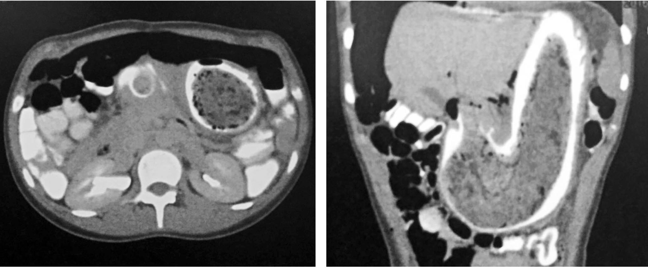 Figura 1. TAC de abdomen con doble contraste.