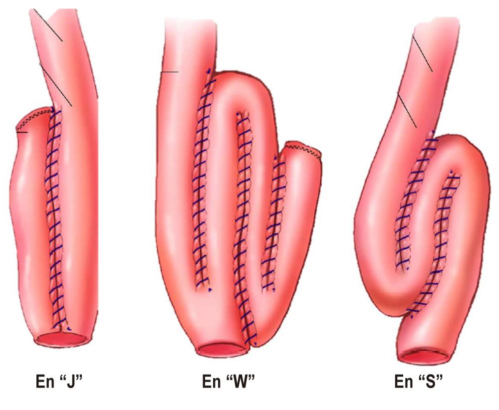 Figura 1. Principales tipos de reservorio