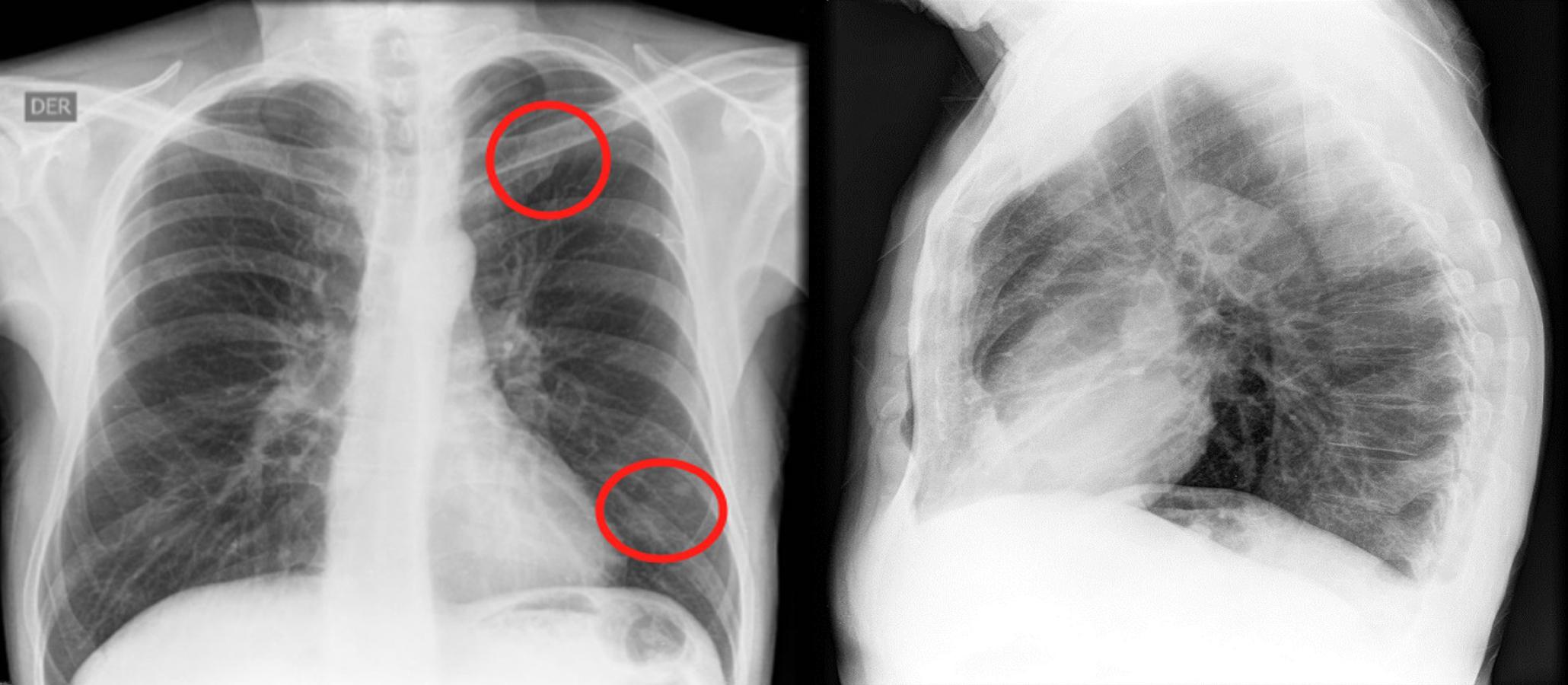 Figura 1. En la radiografía de tórax se observan opacidades nodulares con densidad de tejidos blandos, proyectadas a nivel de los lóbulos superior e inferior izquierdo. Fuente: archivo de los autores.