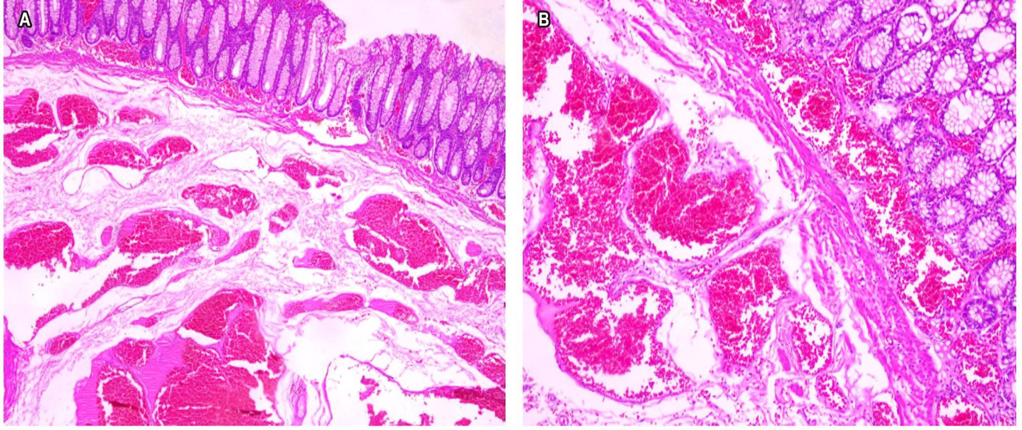 Figura 2. Representación de la lesión en la que se observan vasos sanguíneos de diferentes tamaños en la submucosa