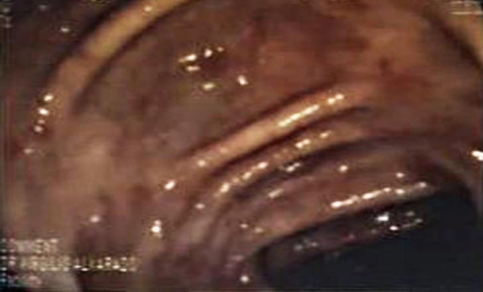 Figura 1. Colonoscopia: hemorragias subepiteliales y erosiones en el colon transverso