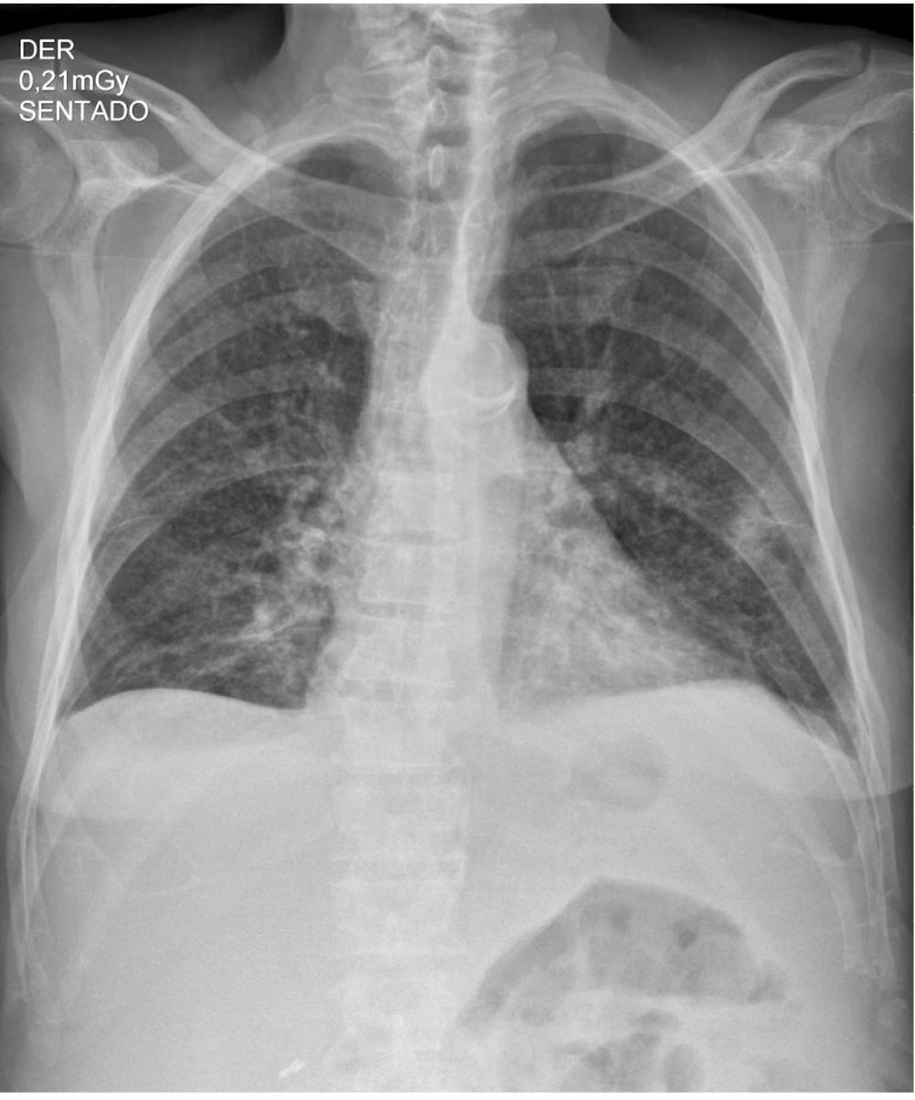 Figura 1. Radiografía anteroposterior (AP) de tórax que muestra opacidades intersticiales reticulares gruesas en ambos campos pulmonares y ángulos costofrénicos libres