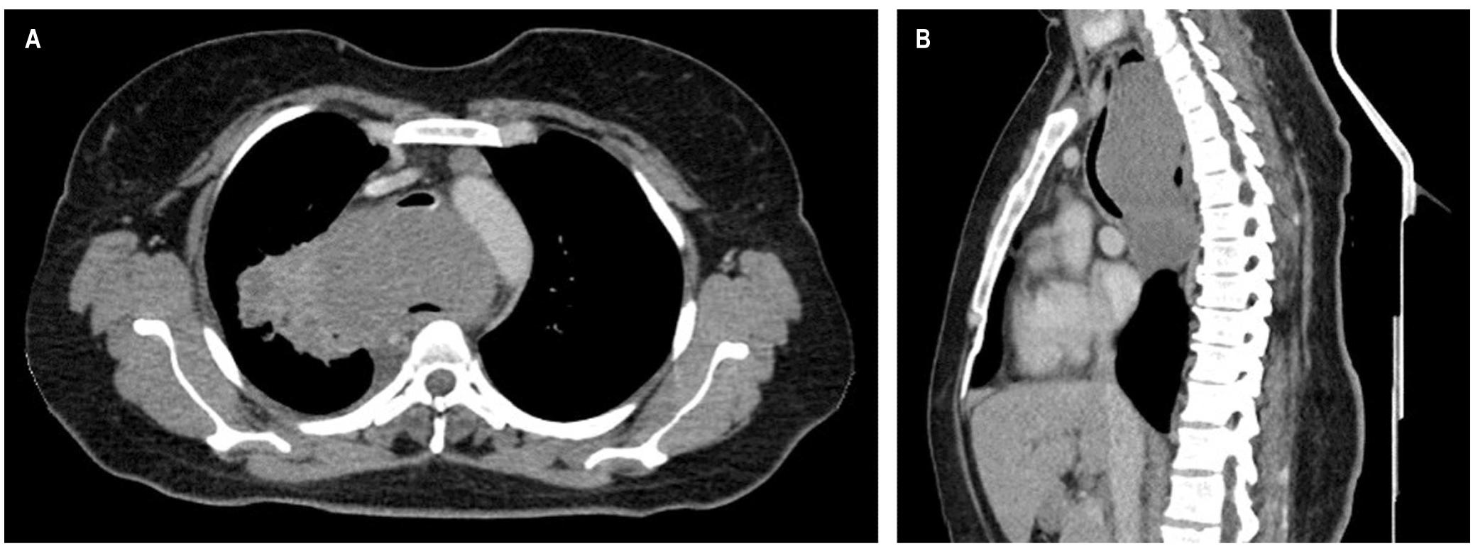 Figura 1. TAC de tórax contrastado.