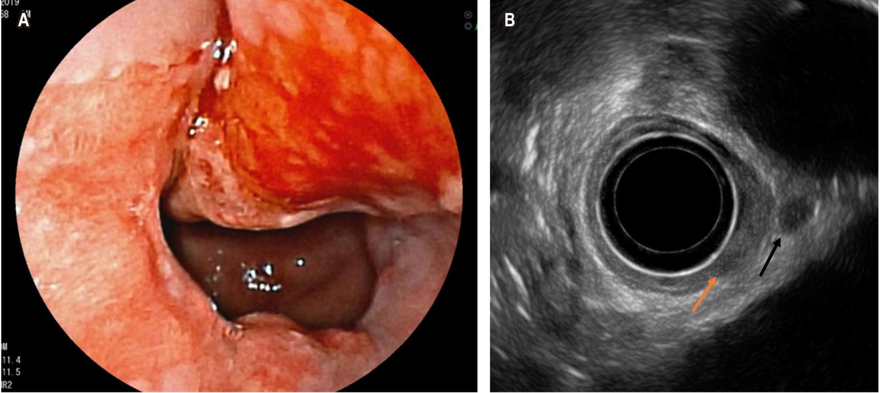 Figura 4. A. Visión endoscópica de una lesión neoplásica proveniente de un esófago de Barrett. B. Visión sonográfica de engrosamiento mucoso con compromiso transmural (flecha naranja) y adenopatía perilesional (flecha negra).