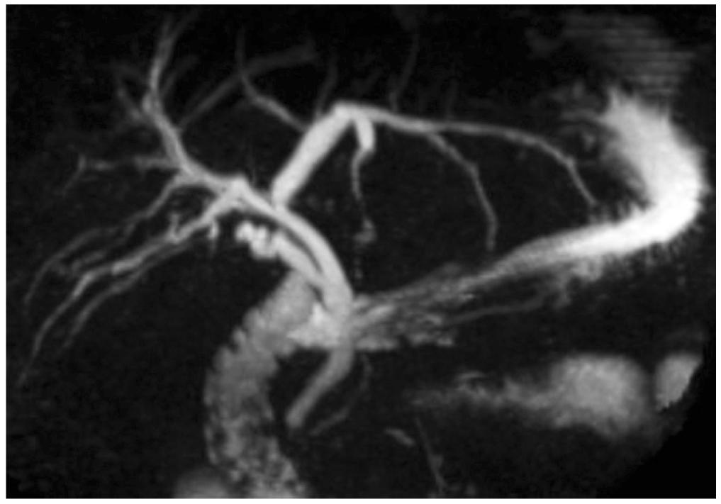 Figura 1. CPRNM. Estado poscolecistectomía, dilatación de la vía biliar intrahepática en el lóbulo izquierdo, colédoco de 8 mm