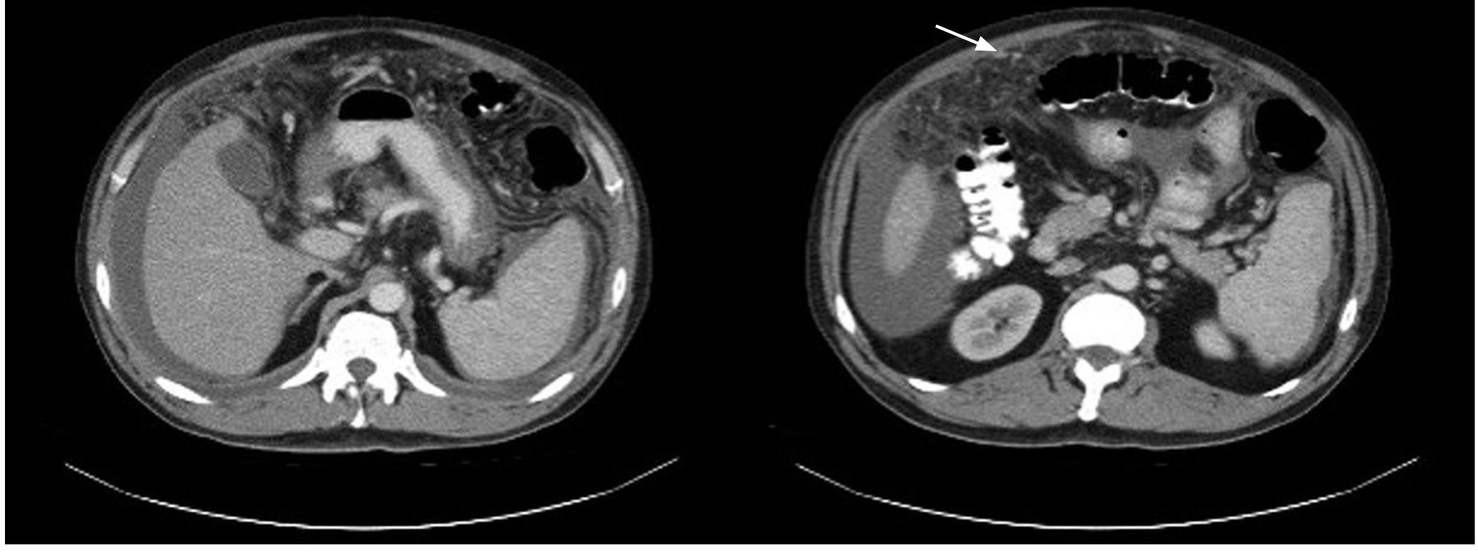 Figura 1. TAC de abdomen contrastada. Hígado pequeño, engrosamiento y múltiples nódulos pequeños en el peritoneo que realzan con el medio de contraste.