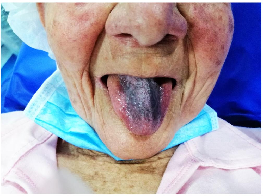 Figura 1. Paciente con coloración negra del dorso de la lengua, que no compromete los bordes laterales ni la punta.