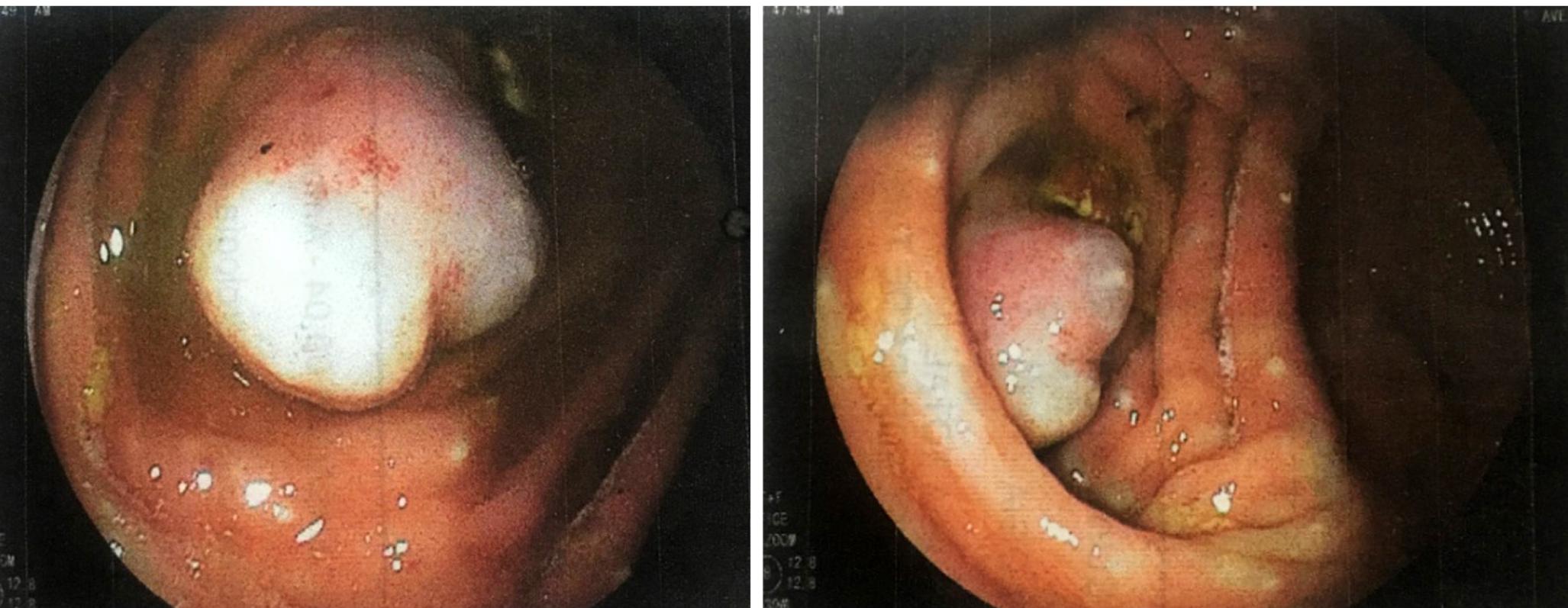 Figura 1. Apéndice cecal invaginado, visión de la colonoscopia en el polo cecal