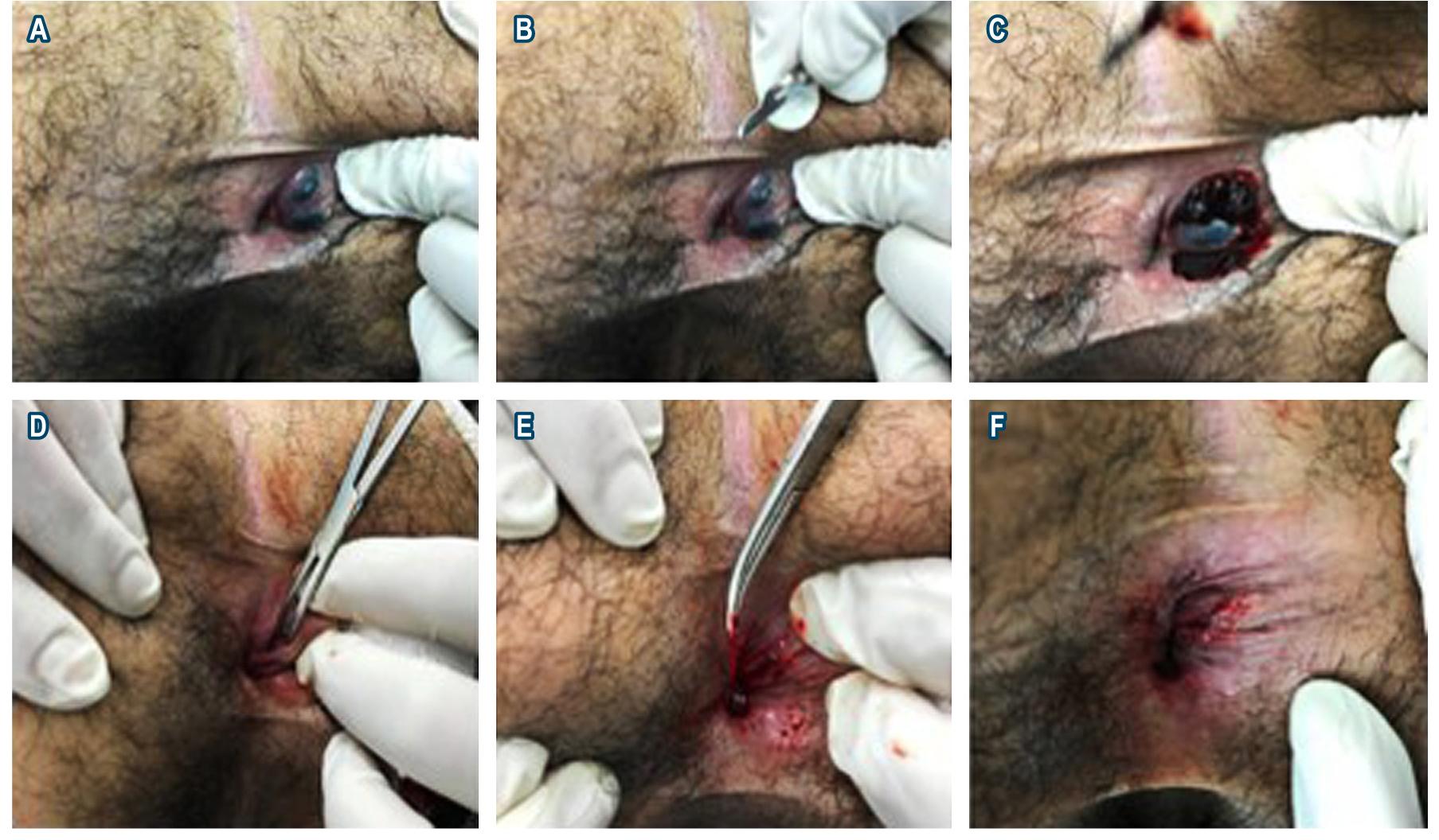 Figura 1. Técnica de trombectomía más fleboextracción