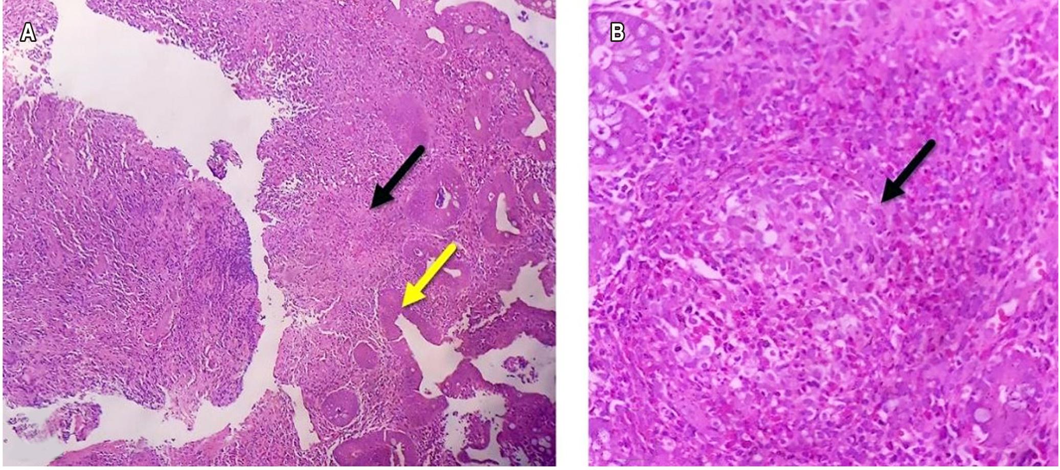 Figura 1. A. Estudio histopatológico de mucosa colónica, con tinción de hematoxilina eosina, resolución 4X, donde se observan erosiones superficiales en la mucosa, fibrina y detritus celulares (flecha amarilla) y formación de granuloma no caseificante (flecha negra). B. Estudio histopatológico de lámina propia, resolución 40X, con presencia de granuloma no caseificante (flecha negra), asociado con un aumento en el número de células inflamatorias tipo linfocitos, plasmocitos, polimorfonucleares neutrófilos y eosinófilos, que permean el epitelio glandular. No se observan cambios displásicos