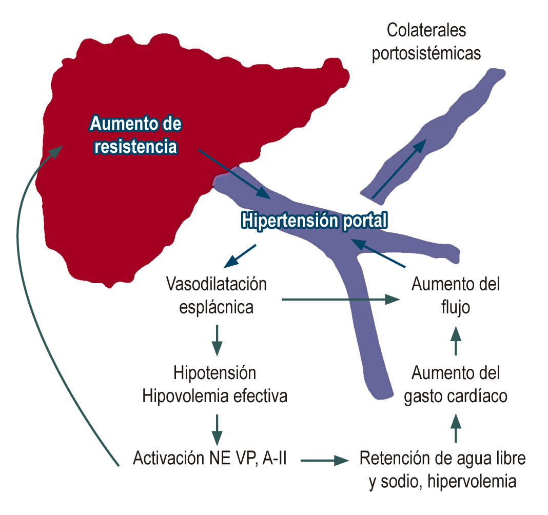 Figura 2. Fisiopatología de la hipertensión portal. AII: Angiotentesina; NE: Norepinefrina; VP: Vasopresina